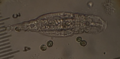 Bdelloid rotifer.png